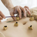 Behandlungsmethoden • Moxibustion • TCM Vetsch Thalwil